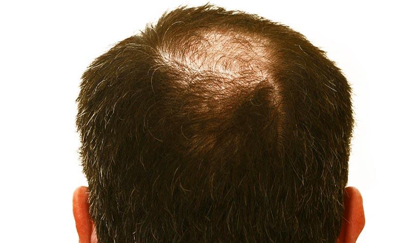 håret blir tunnare