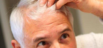 Manligt håravfall